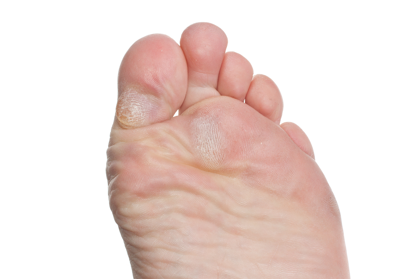 Painful callouses on bottom of feet