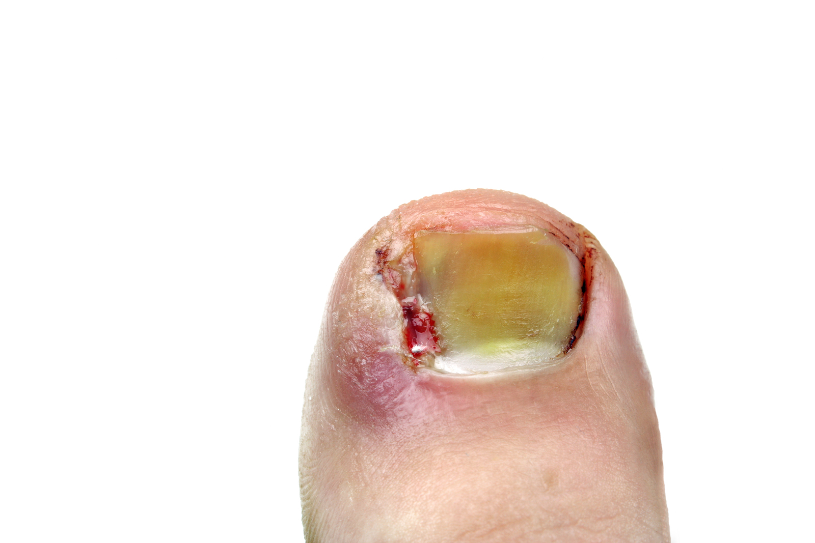 Ingrown Toe Nails - Estuary Clinic, Topsham Exeter