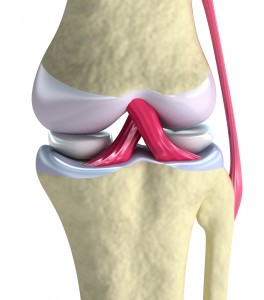Exeter Knee joint