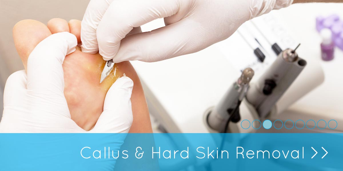 Callus and hard skin removal