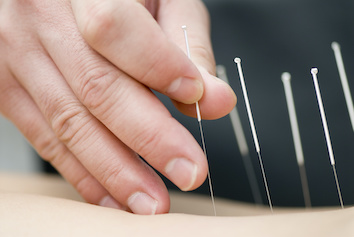 Exeter Acupuncture